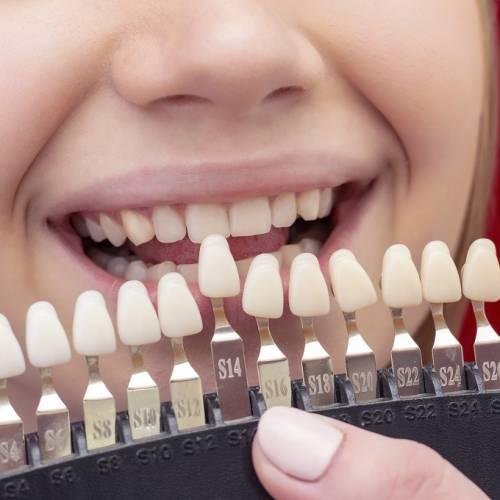 Por qué no hacerte un blanqueamiento dental casero